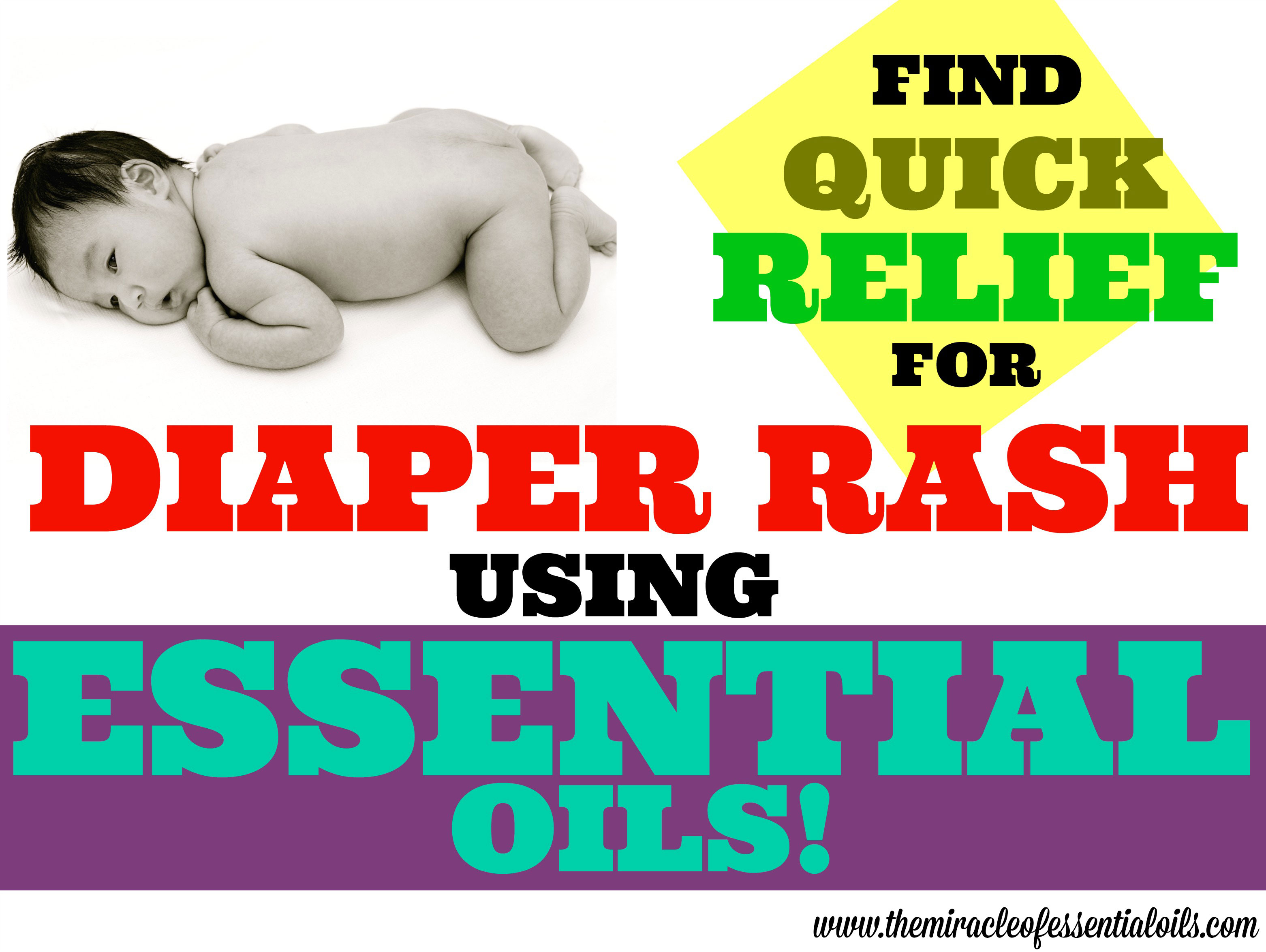 Top 5 Essential Oils For Diaper Rash In Babies Essentialoilsfordiaperrashrelief