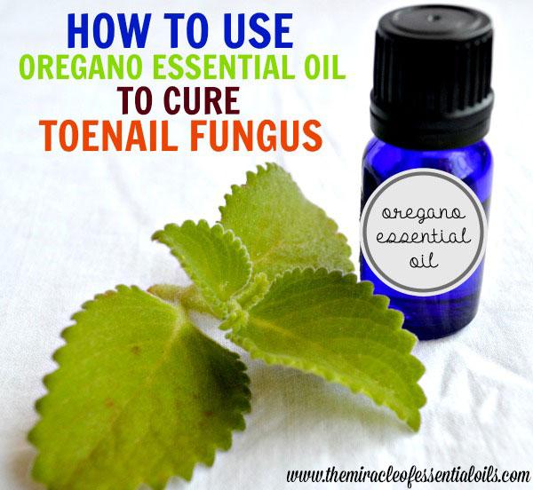 Using Oregano Essential Oil for Toenail Fungus | A Natural Treatment ...