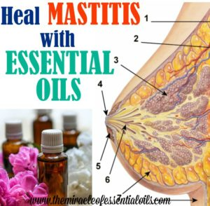 What are the Best Essential Oils for Mastitis?