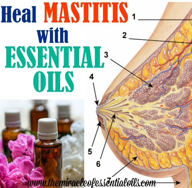essential oils for mastitis