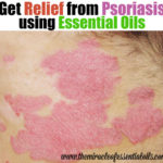 Top 20 Essential Oils to Treat Psoriasis