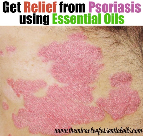 Top 20 Essential Oils To Treat Psoriasis The Miracle Of Essential Oils
