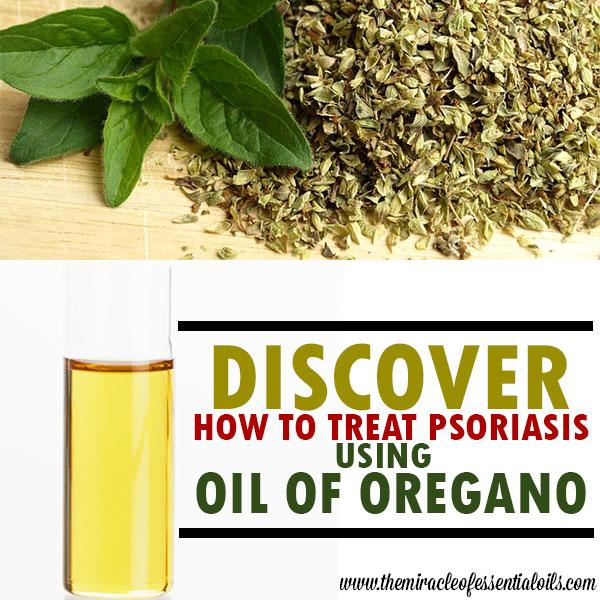 oil of oregano psoriasis treatment