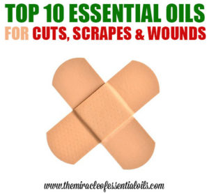Top 10 Essential Oils for Cuts and Scrapes