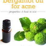 Bergamot Oil for Acne – How Effective Is it?