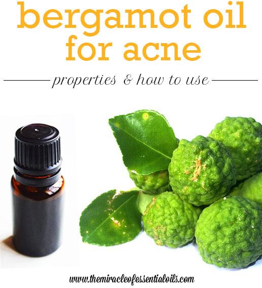 bergamot oil for acne