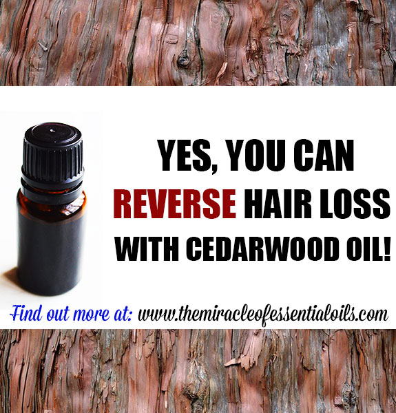 Cedarwood Essential Oil for Hair Loss | How it Works & Usage Tips