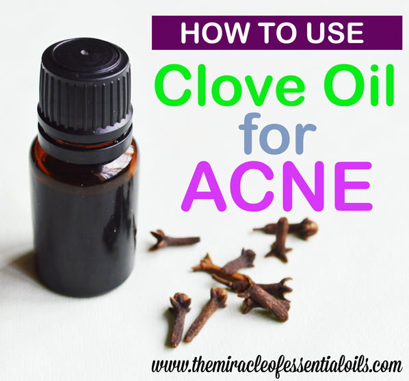 clove essential oil for acne