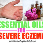 Healing with 7 Essential Oils for Severe Eczema + 3 Treatment Recipes
