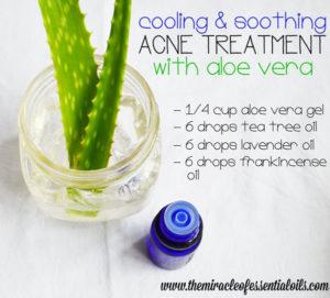 Antibacterial Acne Essential Oil Recipe