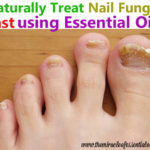 How to Treat Toenail Fungus with Essential Oils