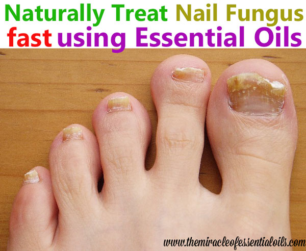 How to Treat Toenail Fungus with Essential Oils - The
