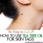 Tea Tree Oil for Skin Tags | Quick Natural Remedy
