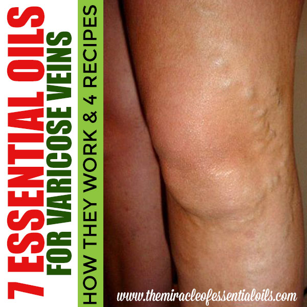 Cypress oil for varicose veins