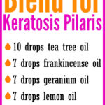 DIY Essential Oil Blend for Keratosis Pilaris