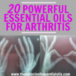 Top 20 Powerful Essential Oils for Arthritis Treatment