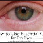 How to Use Essential Oils for Dry Eyes