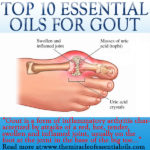 Top 10 Essential Oils for Gout & 4 Recipes for Relief