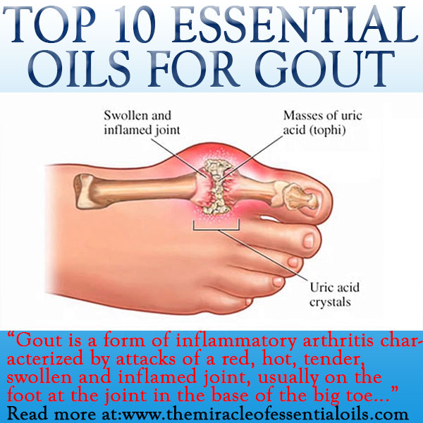 Top 10 Essential Oils For Gout 4 Recipes For Relief The Miracle