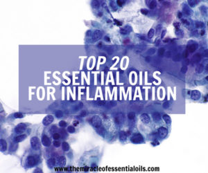 Top 10 Essential Oils for Inflammation, Auto-immune Disease, Swelling & Pain