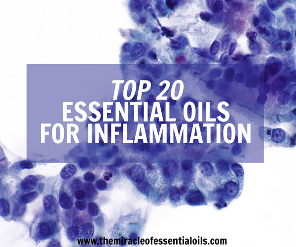 Top 10 Essential Oils For Inflammation Auto Immune Disease