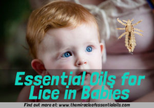 Using Essential Oils for Lice in Newborn Babies