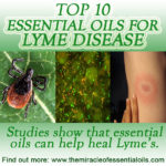 10 Essential Oils for Lyme Disease & Recipes to Use