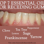 Grow Back Gums with Essential Oils for Receding Gums