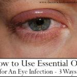 Using Essential Oils for Eye Infection or Blepharitis
