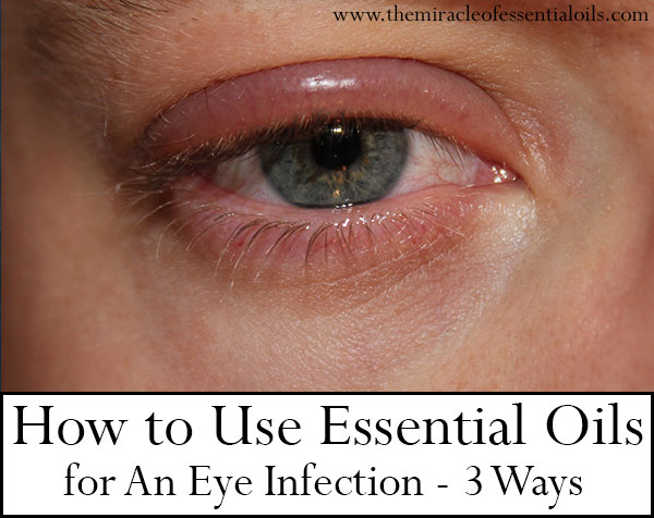 How To Cure A Eye Infection Naturally