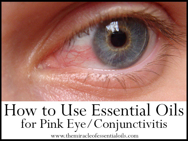 how to use essential oils for pink eye