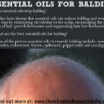 7 Essential Oils for Balding & How to Use
