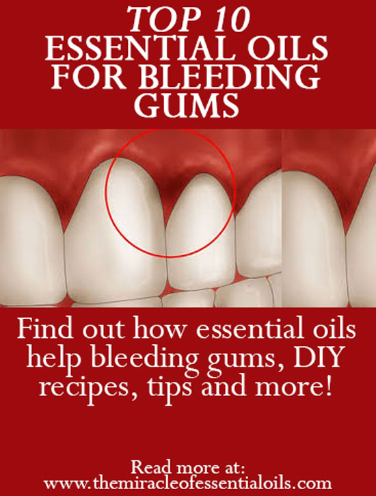 essential-oils-for-bleeding-gums