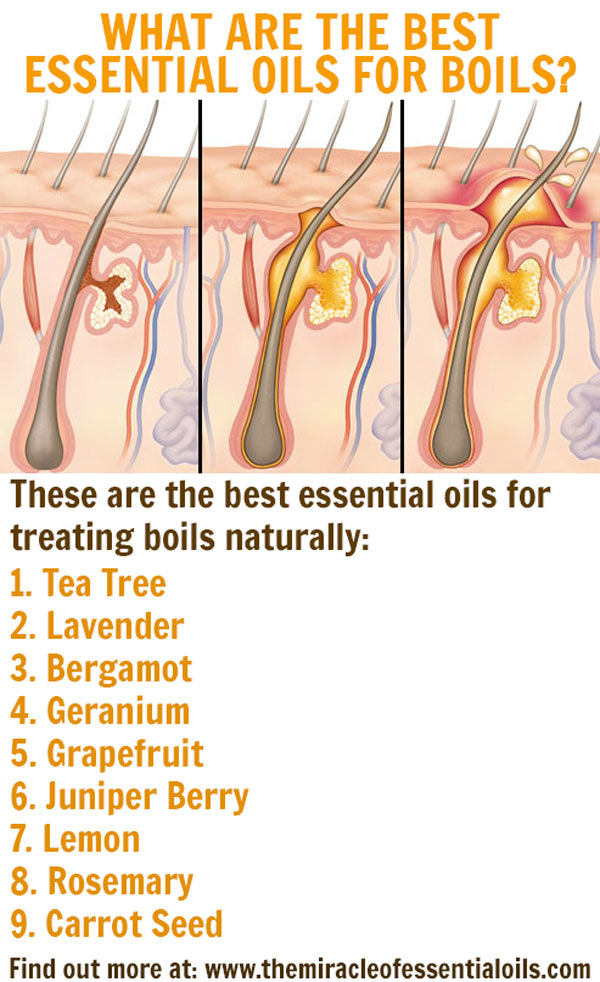 9 Best Essential Oils for Boils & DIY Recipes - The Miracle