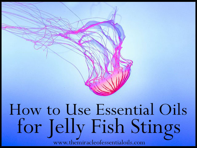 10 Relieving Essential Oils for Jelly Fish Stings
