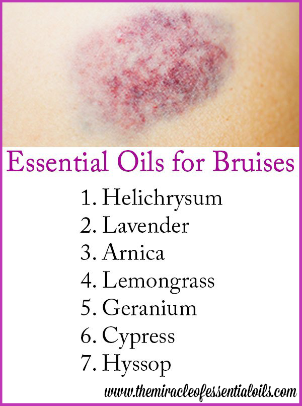 Got a bruise? Try healing it faster with essential oils