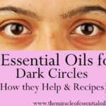 4 Best Essential Oils for Dark Circles