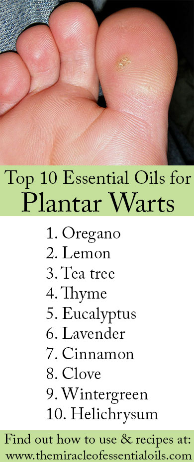 Top 10 Essential Oils for Plantar Warts & How to Use Them Properly