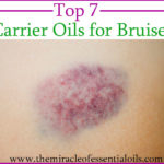 Top 7 Carrier Oils for Bruises