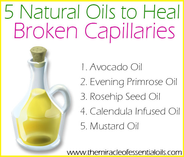 how to get rid of broken capillaries on face naturally