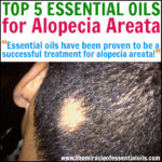 Top 7 Essential Oils for Alopecia Areata