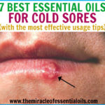 7 Best Essential Oils for Cold Sores & How to Use