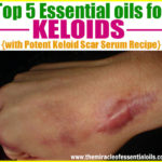 Top 5 Essential Oils for Keloids & How to Use