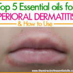 Top 5 Essential Oils for Perioral Dermatitis & How To Use Them for Quick Relief