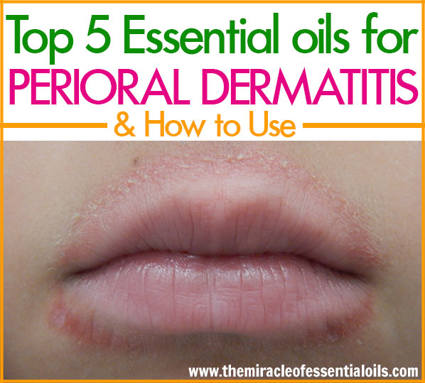 Natural remedies work very well in getting perioral dermatitis under control. Use one or more of these top 5 essential oils for perioral dermatitis as a quick natural remedy!
