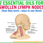 7 Best Essential Oils for Lymph Node Swelling & How to Use + Recipes