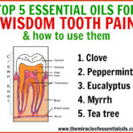 Top 5 Essential Oils for Wisdom Tooth Pain & How to Use