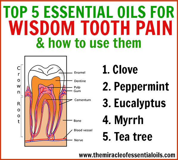 Got wisdom tooth pain! Ouch! Use these fast-acting essential oils for wisdom tooth pain relief!