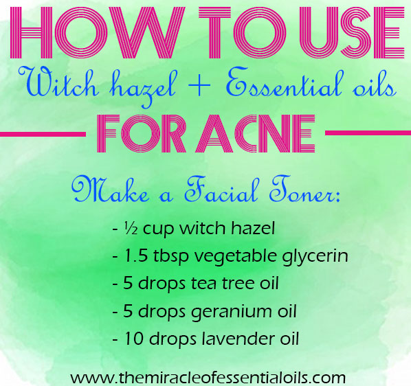 Learn how to use witch hazel and essential oils for acne as a natural treatment!