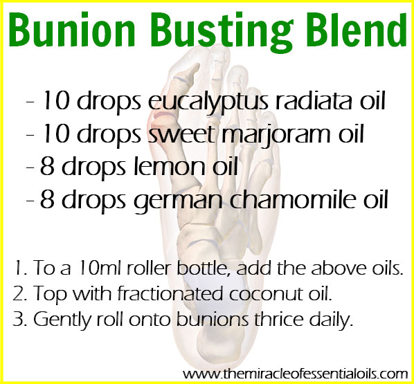 Got a bunion? Use this roller bottle blend as a natural treatment to relieve pain, inflammation and help dissolve the bunion
